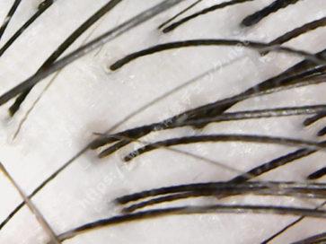 コラージュフルフルプレミアム 頭皮の状態